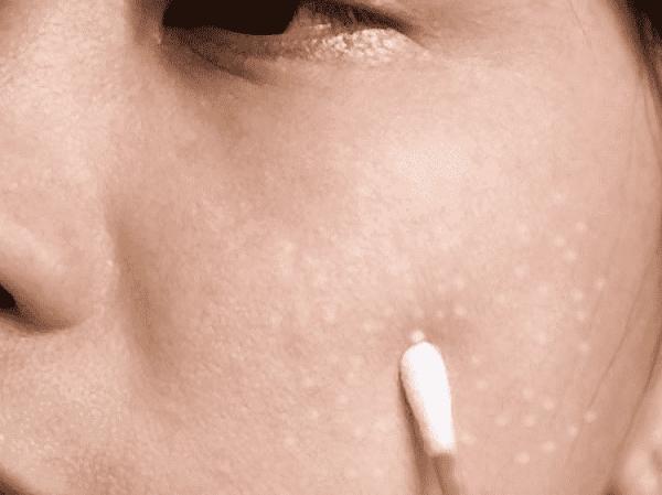 Жировики на лице (липома): как избавиться, причины и лечение, удаление
