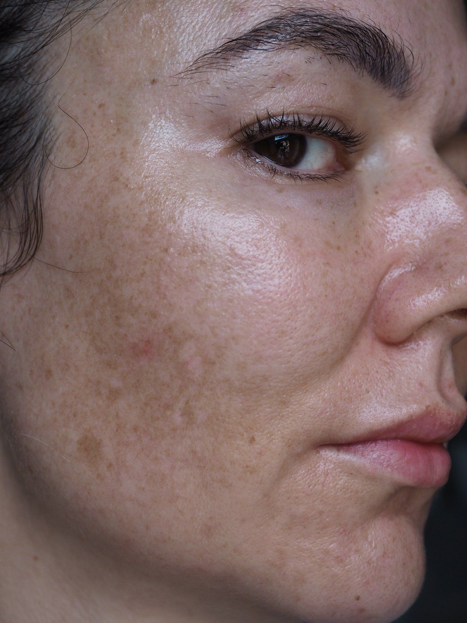 Особенности и лечение меланомы на лице