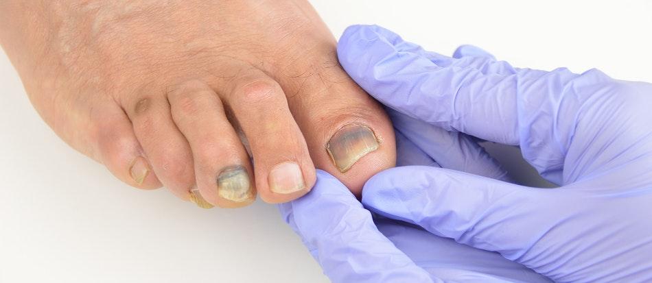 Лечение панариция пальца на руке