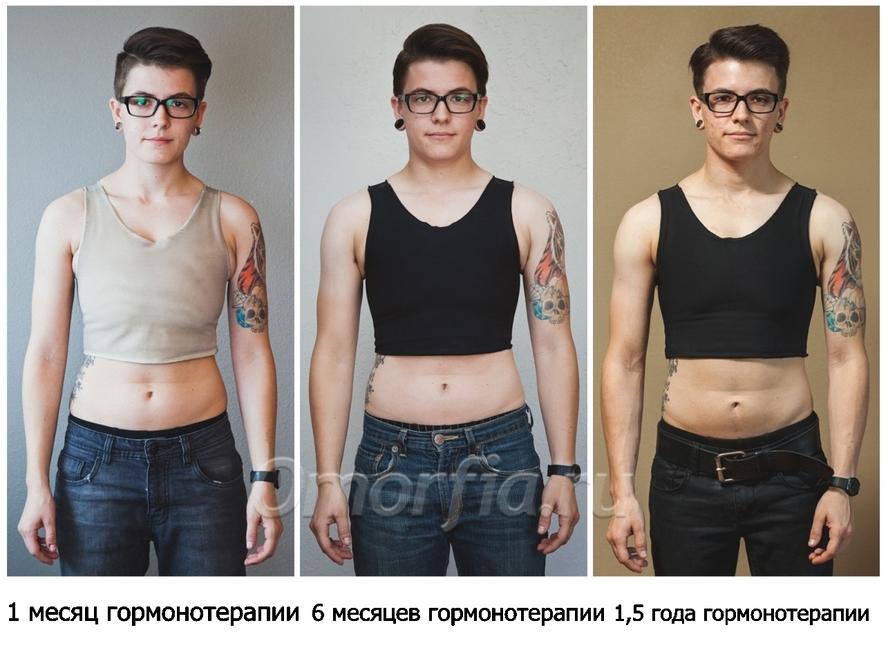 Зачем люди меняют имя, внешность и пол? объясняет психоаналитик