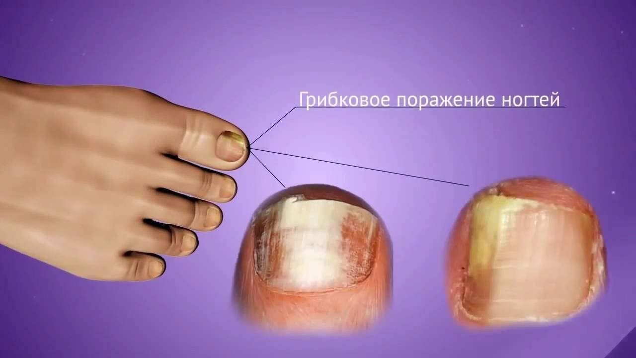 Самостоятельное лечение запущенной формы грибка ногтя на ногах и руках: лучшие средства