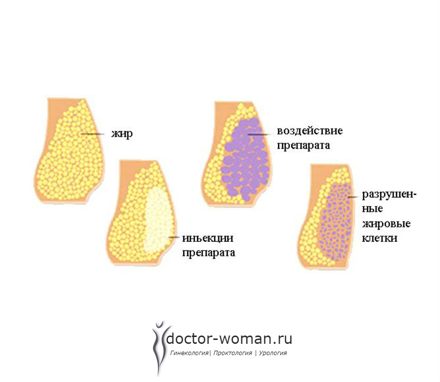 Липолитики для похудения: применение, лучшие препараты, фото до и после + вопросы и отзывы