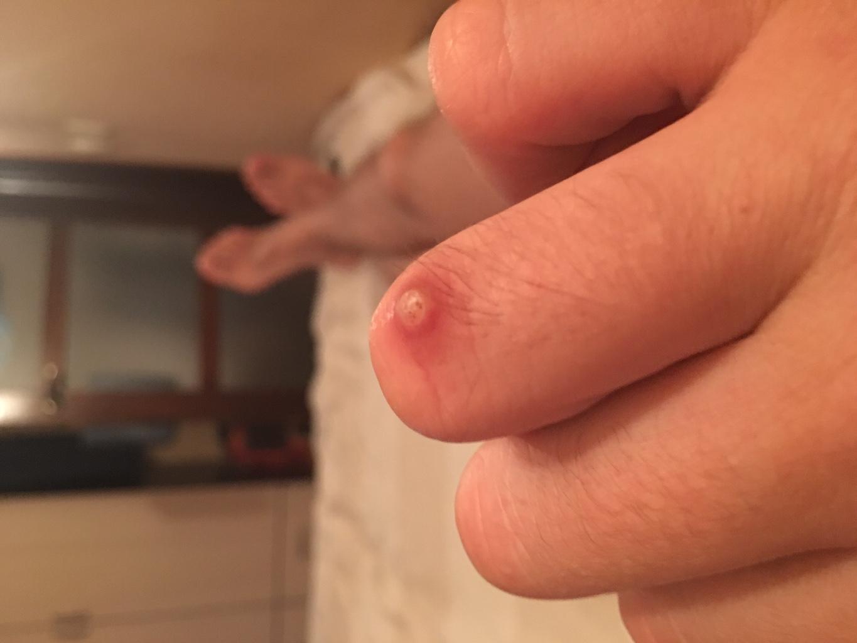 Как правильно лечить нарыв на пальце возле ногтя в домашних условиях