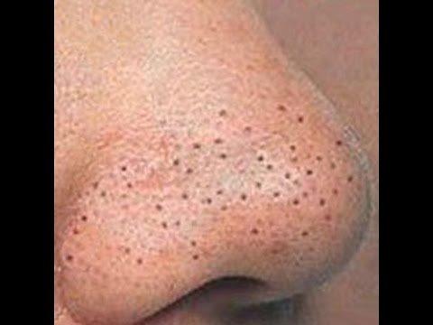 Косметические средства от черных точек на лице