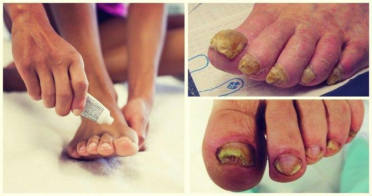 Препараты от грибка стопы и ногтей, какие помогают реально