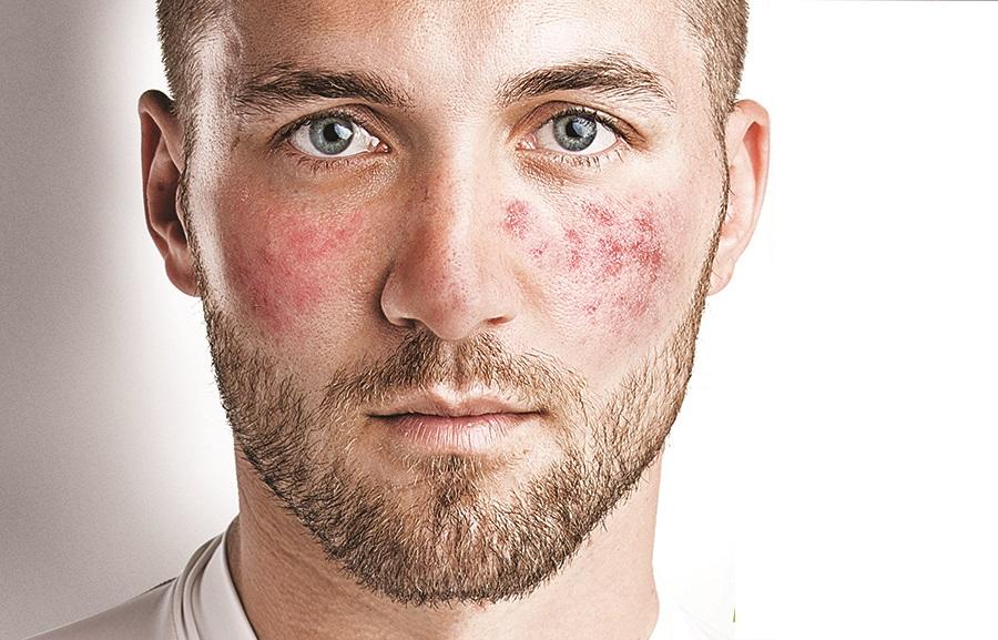 Покраснение кожи лица – к какому врачу обращаться? какие анализы и исследования может назначить врач?