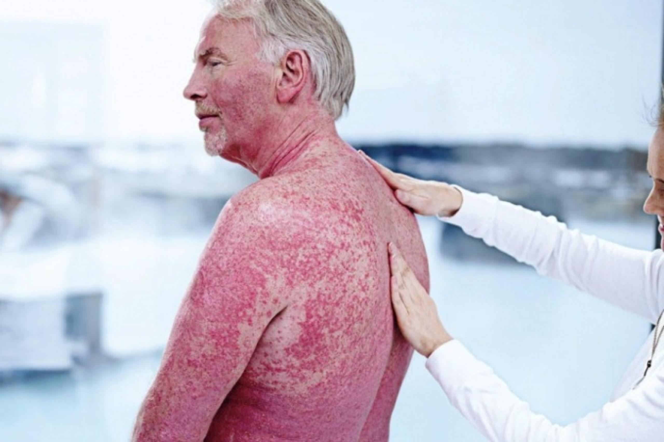 Псориаз. сухость и воспаление кожи