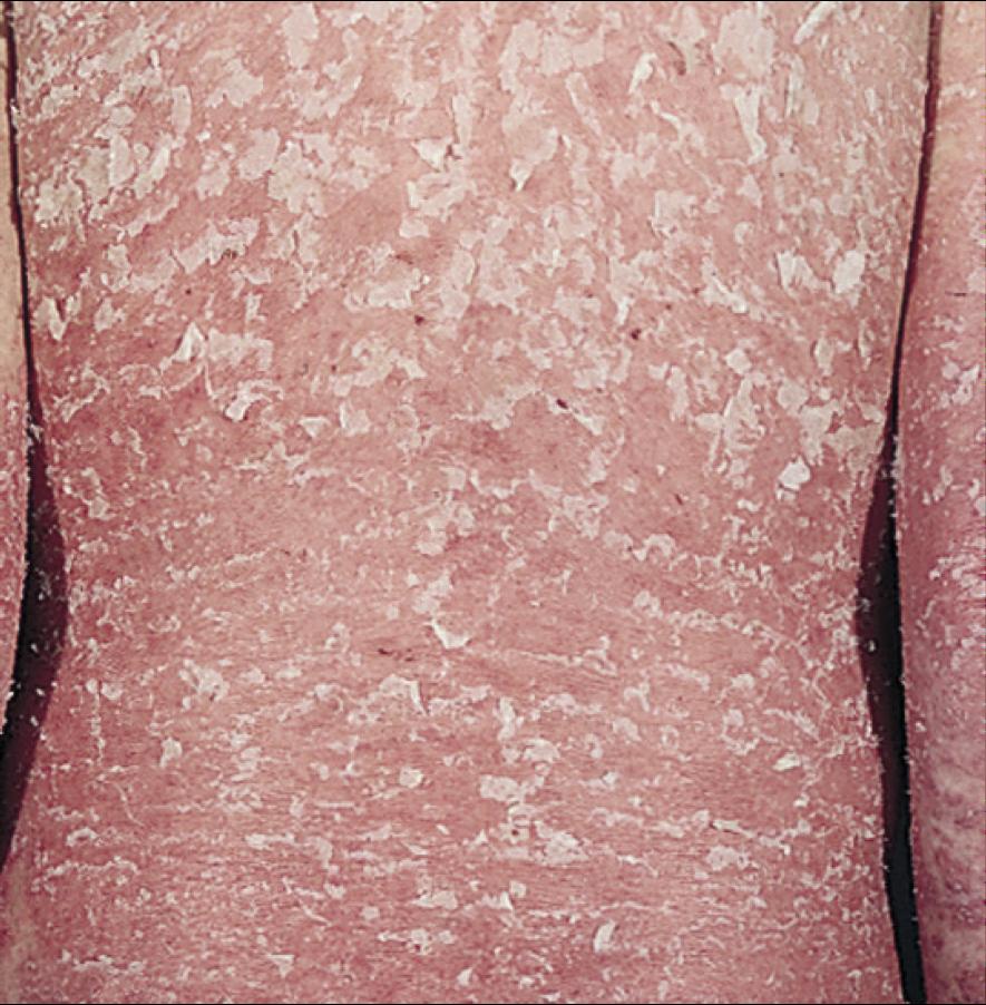 Начальный псориаз, вид и симптомы