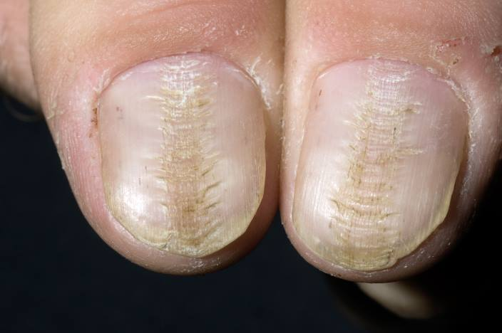 Болезни ногтей: причины, симптомы и лечение