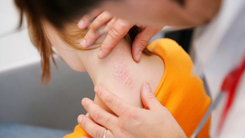 Псориаз: признаки, симптомы, причины, виды и формы заболевания, лечение, диета, профилактика