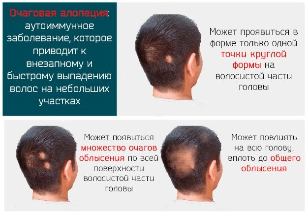 Если у ребёнка выпадают волосы: причины, диагностика и лечение