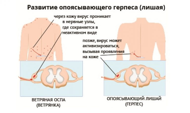 Опоясывающий лишай (герпес зостер). причины, симптомы и признаки, диагностика и лечение болезни