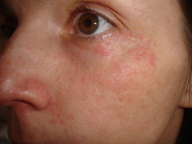 Средства и мази от раздражения кожи