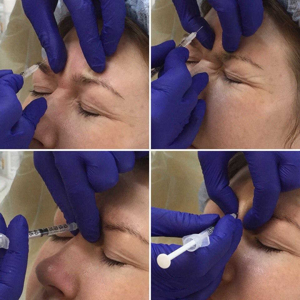 Увеличение губ в Москве лучшие хирурги и клиники