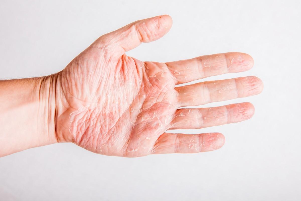Экзема. причины, симптомы, признаки, диагностика и лечение патологии