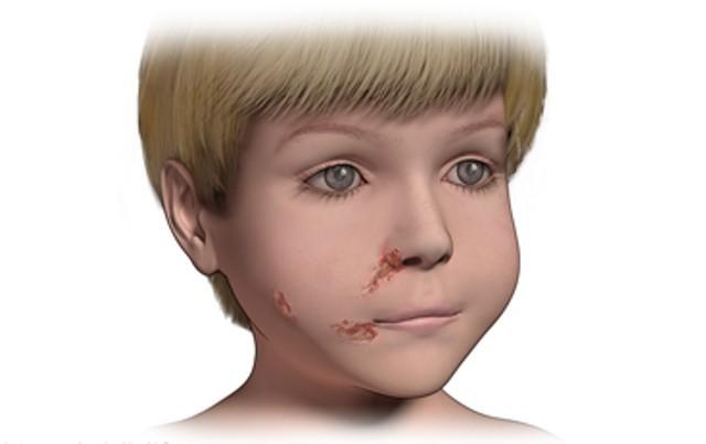 Импетиго — причины появления болезни, диагностика и варианты лечения у детей и взрослых (90 фото и видео)