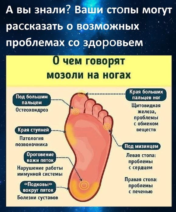 Лечение натоптышей со стержнем на подошве ноги — обзор методов, фото