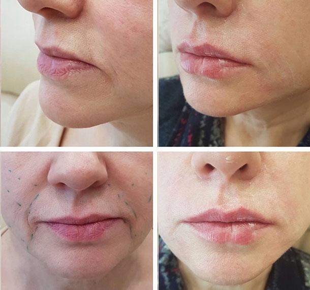 Контурная пластика лица: что нужно знать о процедуре