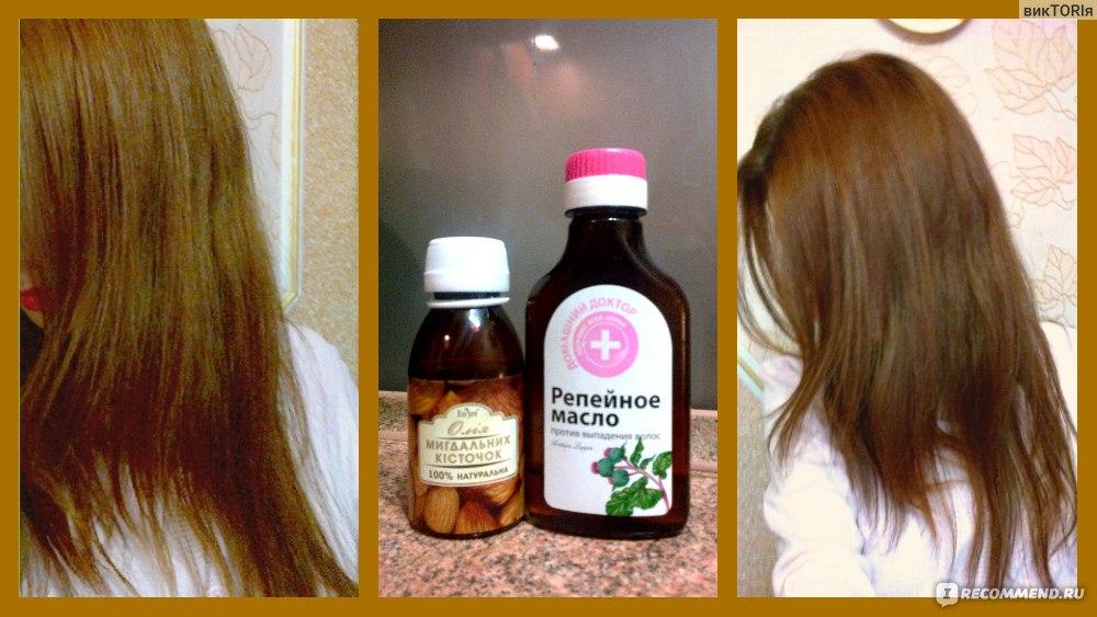 Репейное масло для волос - применение в домашних условиях для роста и от выпадения