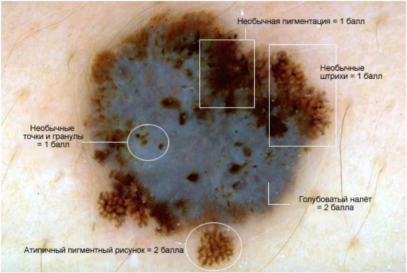 Рак кожи меланома