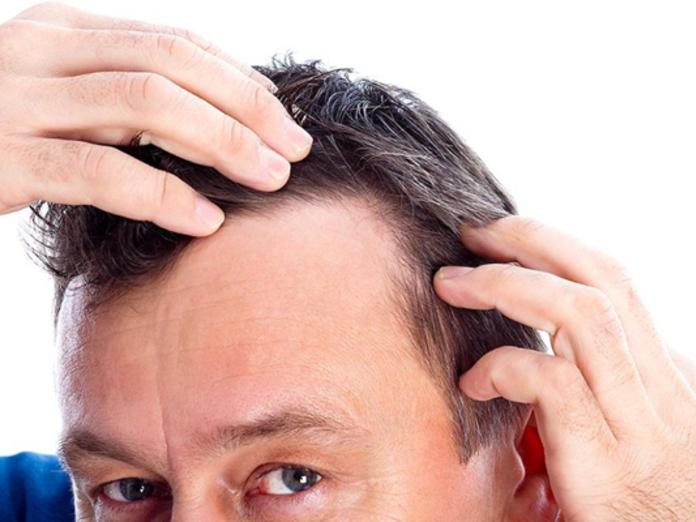 Алопеция у мужчин: причины и лечение в домашних условиях