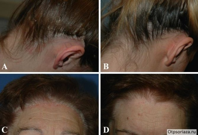 Чем лечить псориаз на голове