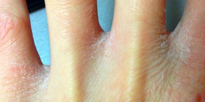 Причины шелушения кожи на теле и способы борьбы с проблемой