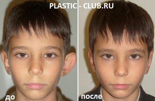 Пластика ушей (отопластика) в москве - цены, отзывы, адреса лучших клиник пластической хирургии