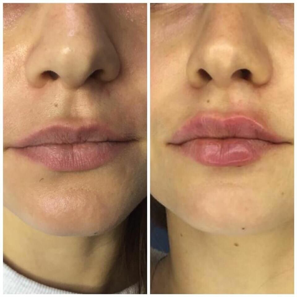 Увеличение губ: советы и рекомендации косметологов