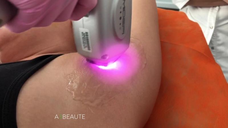 Современные технологии на страже женской красоты какой лазер для эпиляции лучше