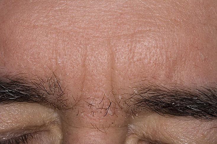 Все, что нужно знать о себорее кожи головы: откуда берется, заразна ли, как выглядит на фото и как ее лечить?