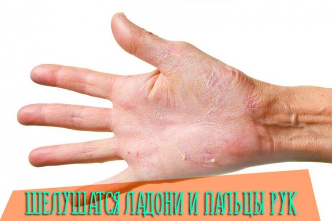 Шелушится кожа на руках, ладонях и пальцах: причины и лечение раздражения