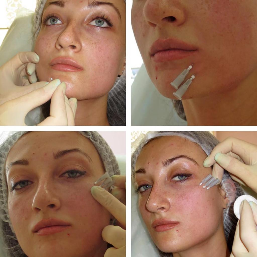Мезонити косметические для подтяжки лица – какие бывают