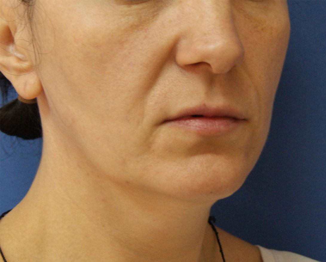 Липофилинг: пластическая хирургия выходного дня