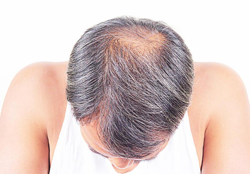 Лечение сильного выпадения волос у женщин после 30: причина имеет значение