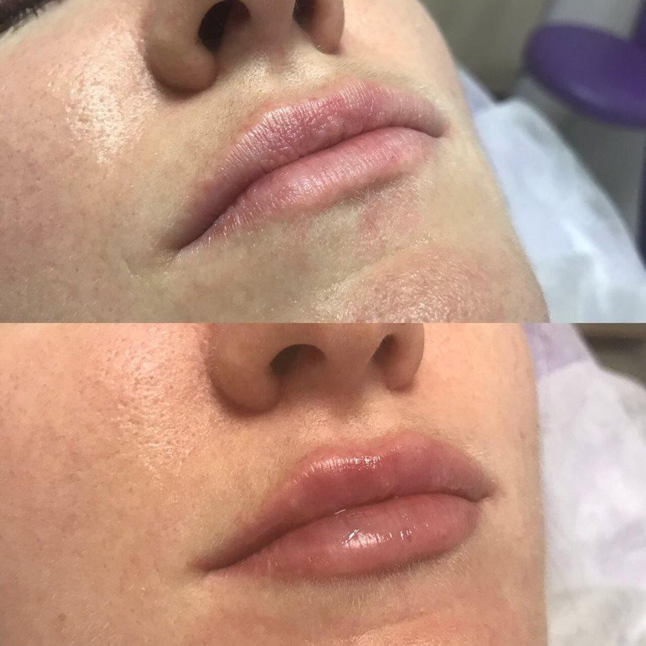 Увеличение губ советы и рекомендации косметологов.
