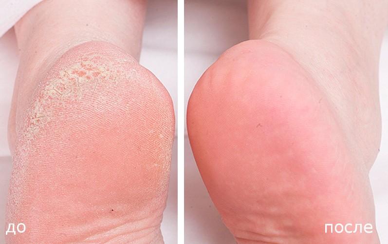 Мозоль на пальце ноги: лечение в домашних условиях
