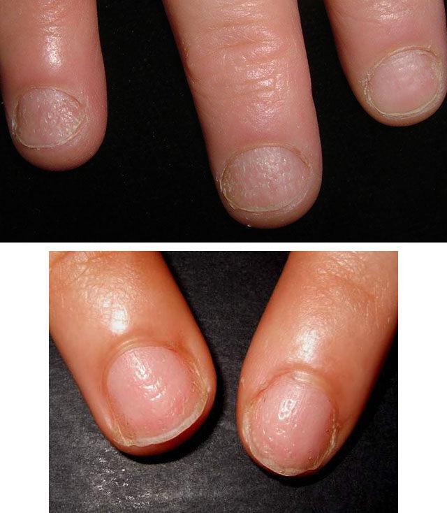 Ониходистрофия ногтей у женщин на ногах и руках - причины и лечение