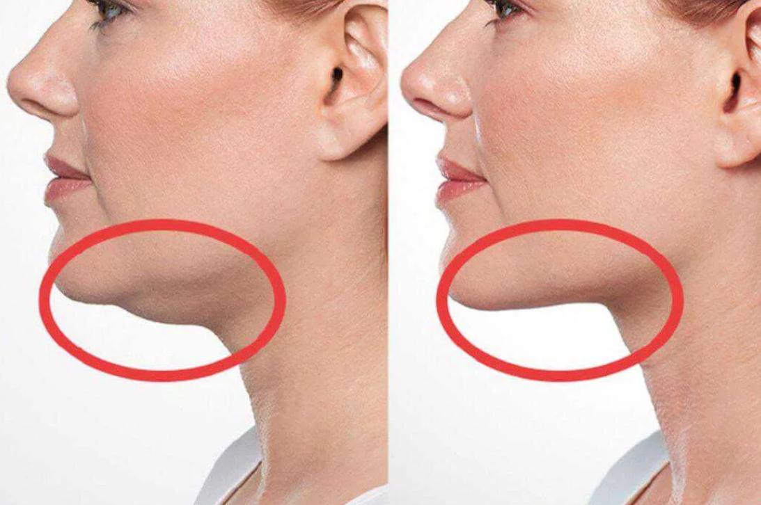 Как избавиться от пухлых щёк и отвлечь от них внимание