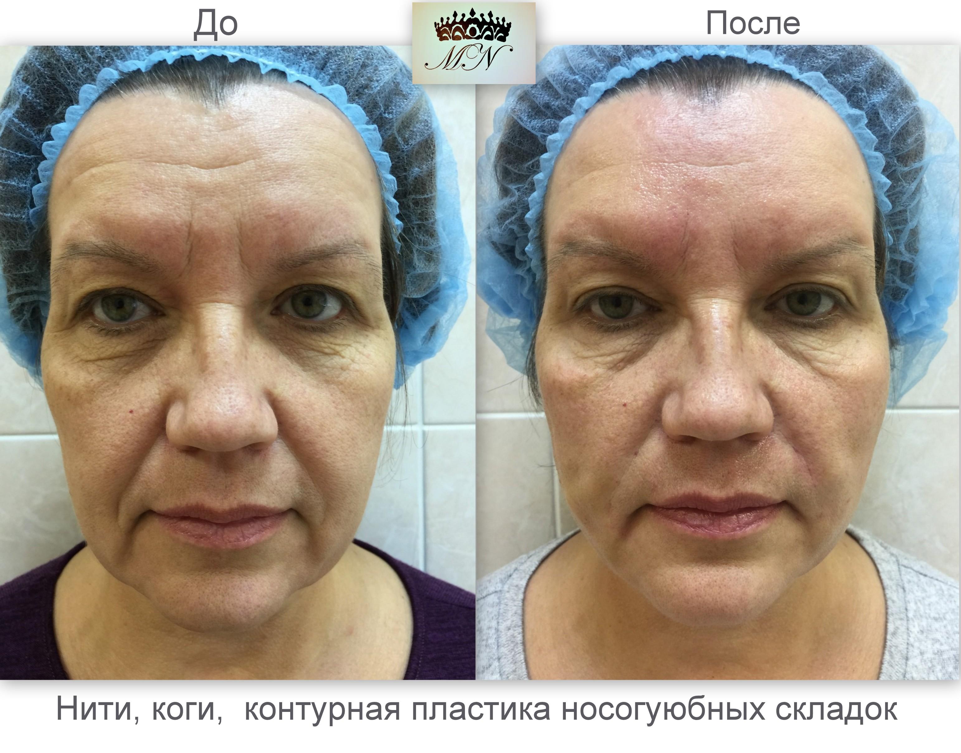 Нити cog (коги) для подтяжки лица. цена, отзывы, фото до и после, реабилитация