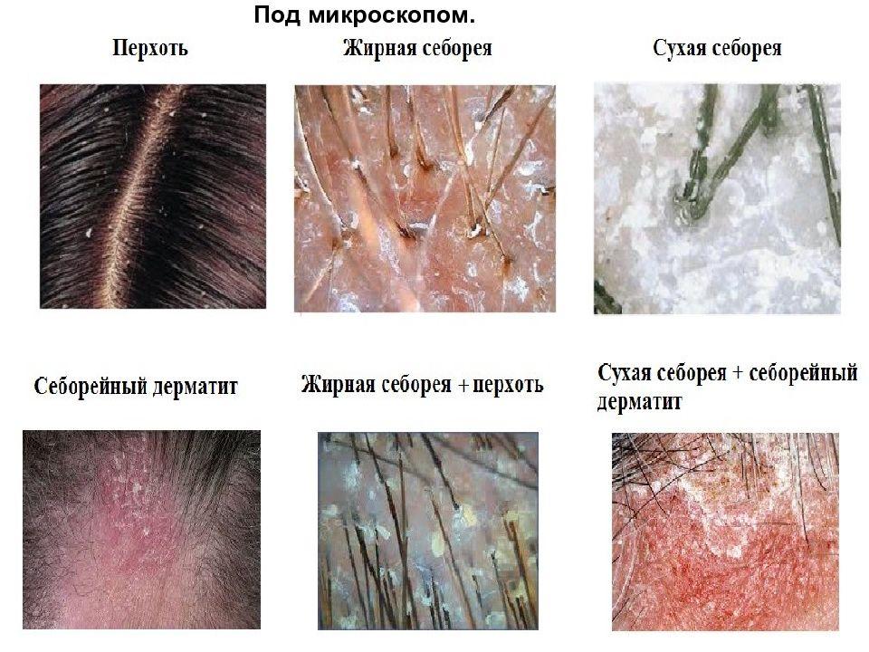 Причины и лечение перхоти на голове: что можно сделать
