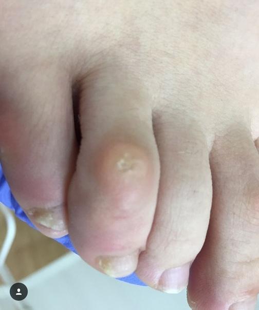 Мозоль на пальце руки: на большом или указательном, на костяшке или сгибе, со стержнем или без, на правой руке от ручки и в других местах, как лечить и избавиться раз и навсегда
