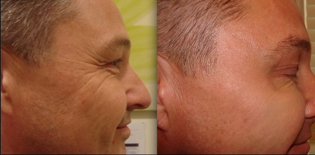 Что такое ботулотоксин и как его применяют в косметологии