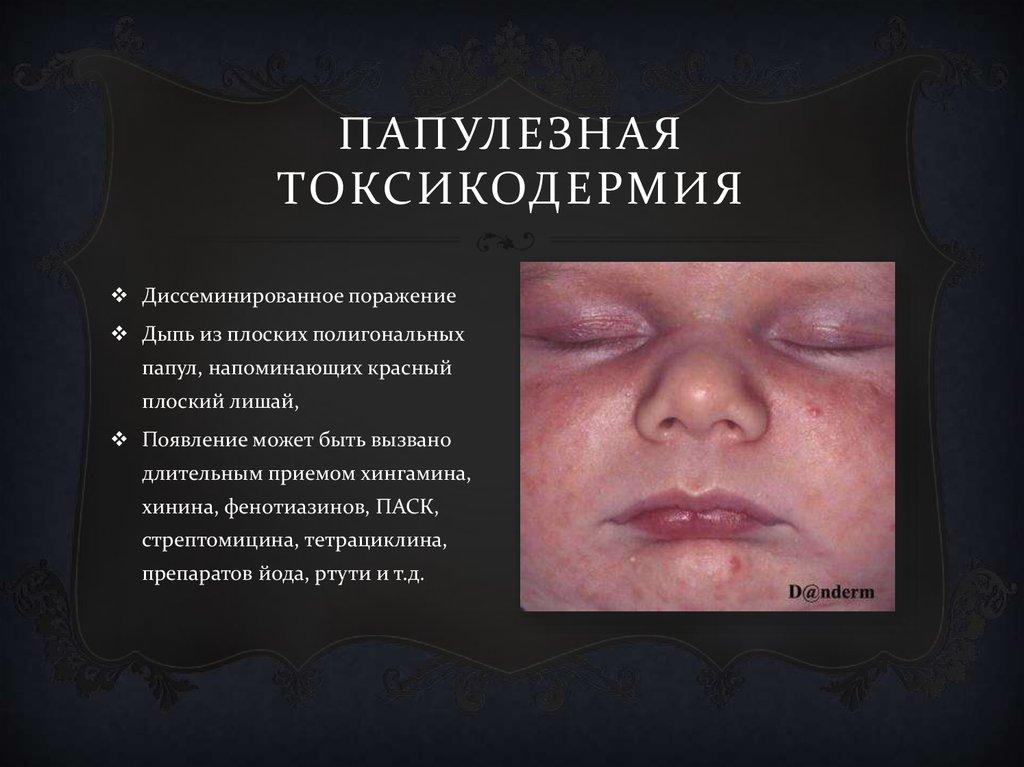 Токсикодермия - симптомы  и лечение