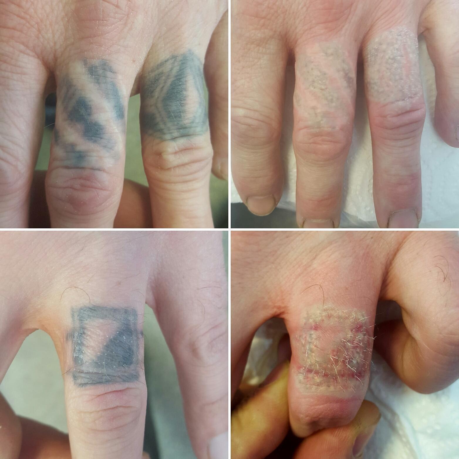 Убрать татуировку в домашних условиях: правда и мифы