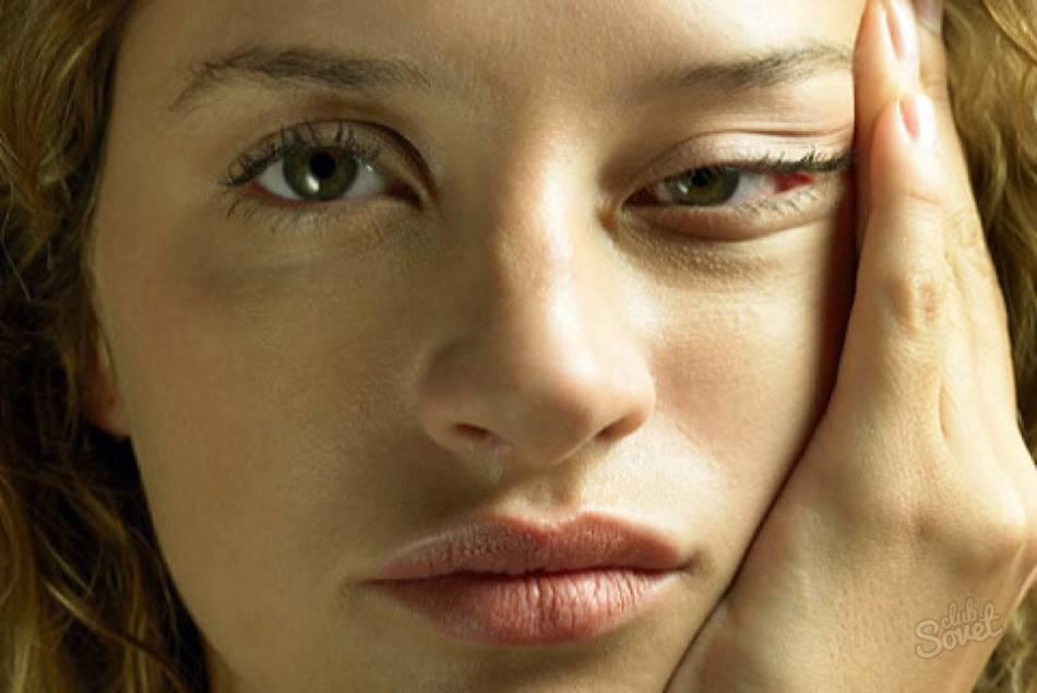 Опухшее лицо: почему опухает лицо и что делать?