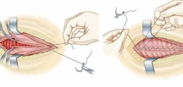 Виды операций по восстановлению девственности