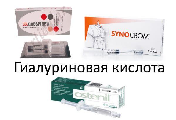 Инъекции гиалуроновой кислоты, цена укола гиалуроновой кислоты, стоимость инъекция гиалуроновой кислоты, в москве в клинике стопартроз