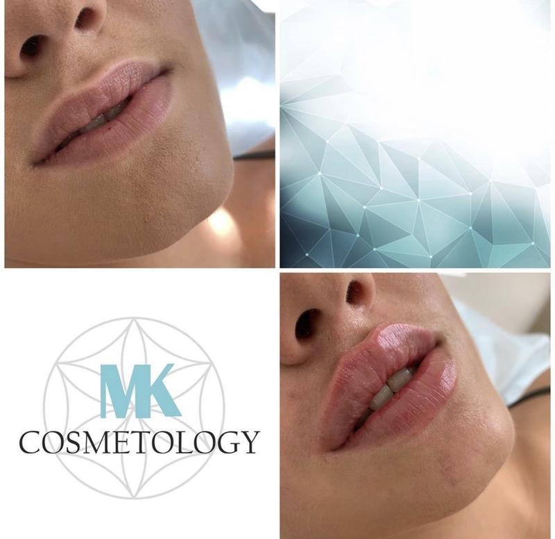 Увеличение губ имплантатами: методика и реабилитационный период