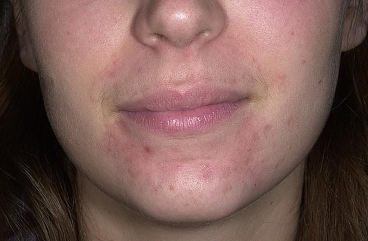 Периоральный дерматит: быстрого результата не ждем, выполняем рекомендации врача-дерматолога